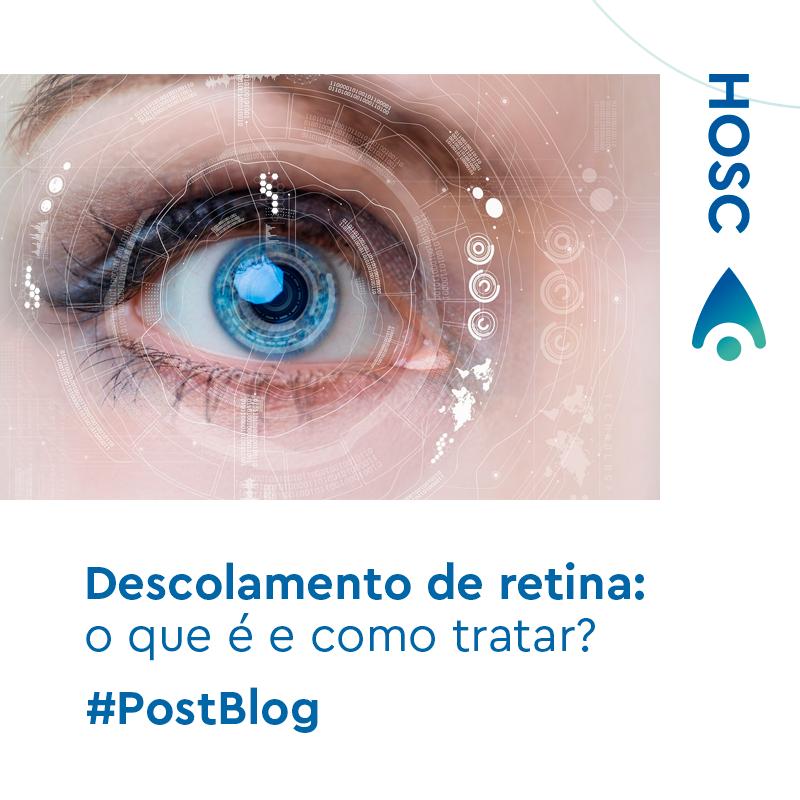 diabetes de deslocamento de retina